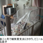 小児喘息が自然治癒に至るまで