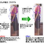 姿勢美法にも好転反応はありますか?