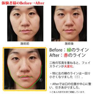 Before→Afterでわかるハーブ温熱を用いた小顔矯正術でボトックス注射いらず